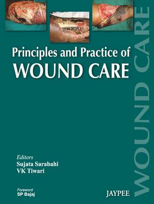Principles and Practice Of Wound Care (Hardback)