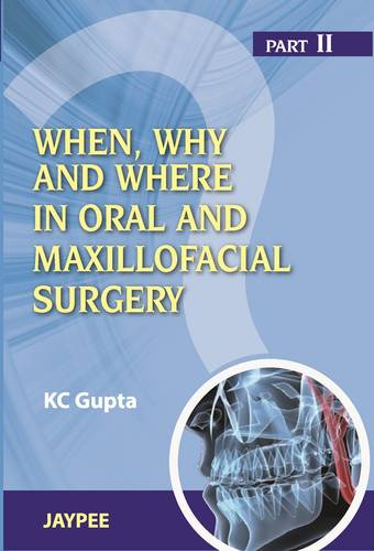 When, Why And Where In Oral And Maxillofacial Surgery: Prep Manual For Undergraduates And Postgraduates Part II (Paperback)