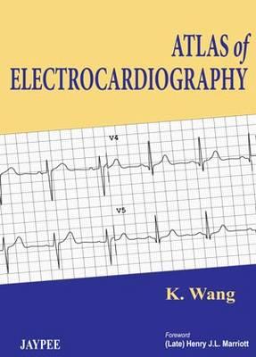 Atlas of Electrocardiography (Hardback)