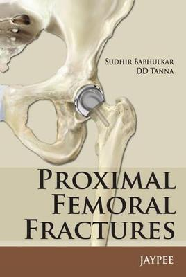 Proximal Femoral Fractures (Paperback)