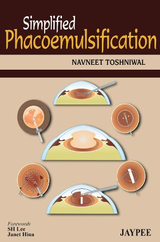 Simplified Phacoemulsification (Paperback)