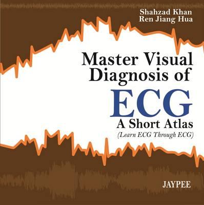 Master Visual Diagnosis of ECG: A Short Atlas (Learn ECG through ECG) (Paperback)