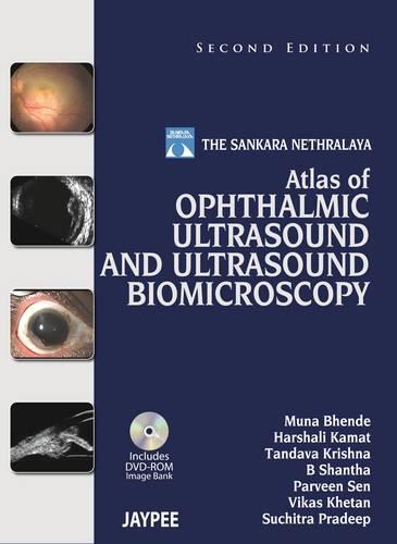 Atlas of Ophthalmic Ultrasound and Ultrasound Biomicroscopy (Hardback)