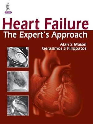 Heart Failure: The Expert's Approach (Hardback)