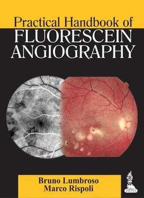 Practical Handbook of Fluorescein Angiography (Paperback)