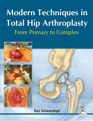 Modern Techniques in Total Hip Arthroplasty: From Primary to Complex (Hardback)
