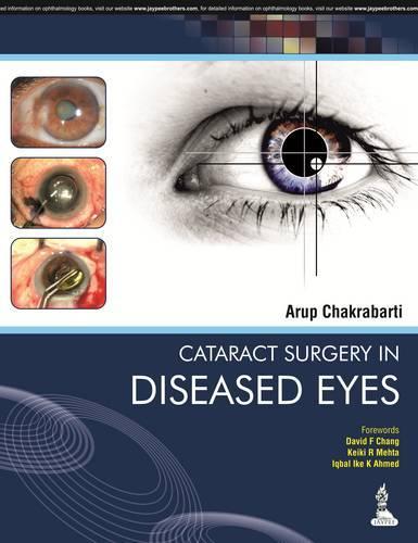 Cataract Surgery in Diseased Eyes (Hardback)