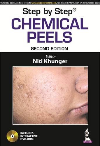 Step by Step: Chemical Peels - Step by Step (Paperback)