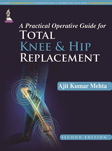 A Practical Operative Guide for Total Knee and Hip Replacement (Hardback)