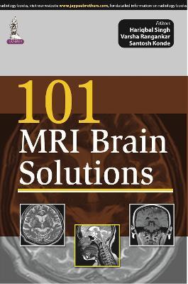 101 MRI Brain Solutions (Paperback)