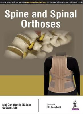 Spine and Spinal Orthosis (Paperback)