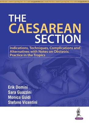 The Caesarean Section (Paperback)