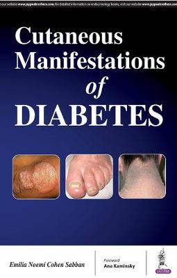 Cutaneous Manifestations of Diabetes (Paperback)