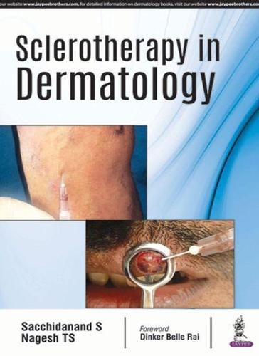 Sclerotherapy in Dermatology (Paperback)