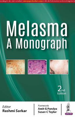 Melasma: A Monograph (Paperback)