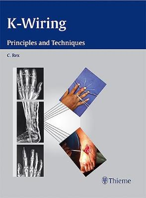 K-Wiring: Principles and Techniques (Hardback)
