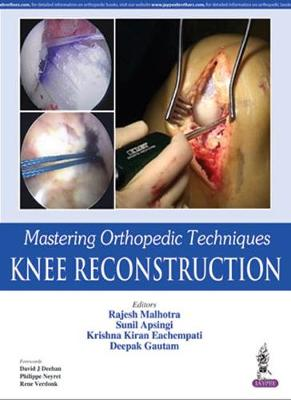 Mastering Orthopedic Techniques: Knee Reconstruction (Hardback)