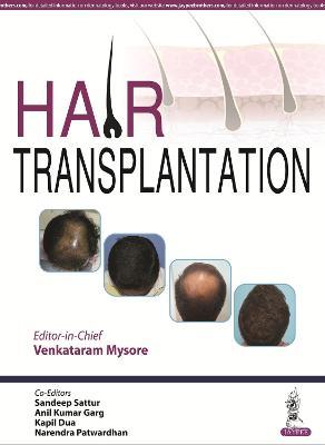 Hair Transplantation (Hardback)