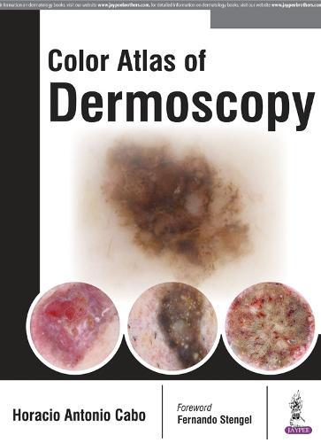 Color Atlas of Dermoscopy (Hardback)