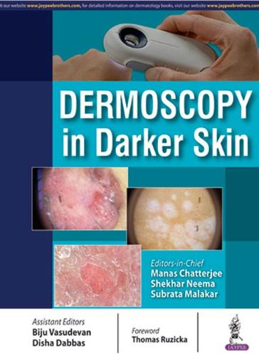 Dermoscopy in Darker Skin (Paperback)