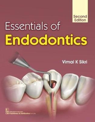 Essentials of Endodontics (Paperback)