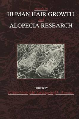 Trends in Human Hair Growth and Alopecia Research (Paperback)