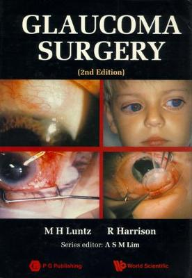 Glaucoma Surgery (2nd Edition) (Hardback)