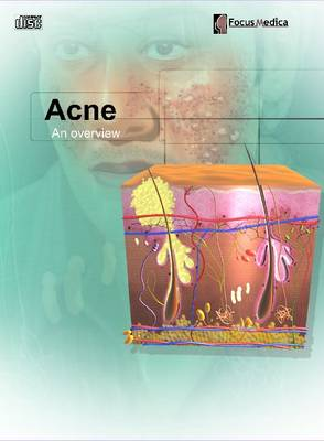 Acne: An Overview (CD-ROM)