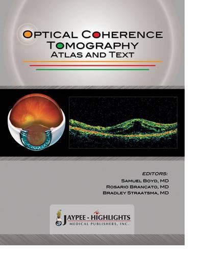 Optical Coherence Tomography: Atlas and Text (Hardback)