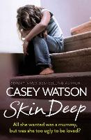 Skin Deep: All She Wanted Was a Mummy, but Was She Too Ugly to be Loved? (Paperback)