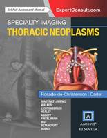 Specialty Imaging: Thoracic Neoplasms - Specialty Imaging (Hardback)