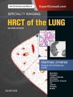 Specialty Imaging: HRCT of the Lung - Specialty Imaging (Hardback)