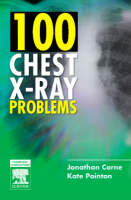 100 Chest X-Ray Problems (Paperback)