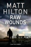 Raw Wounds (Hardback)