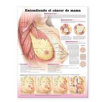 Understanding Breast Cancer Spanish: Entendiendo El Cancer De Mama