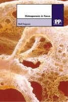Osteoporosis in Focus - In Focus (Hardback)