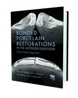 Bonded Porcelain Restorations in the Anterior Dentition