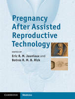 Pregnancy After Assisted Reproductive Technology (Hardback)