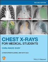 Chest X-Rays for Medical Students: CXRs Made Easy (Paperback)