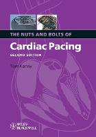The Nuts and Bolts of Cardiac Pacing (Paperback)