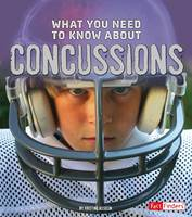 What You Need to Know About Concussions - Fact Finders: Focus on Health (Paperback)
