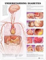 Understanding Diabetes Anatomical Chart (Wallchart)
