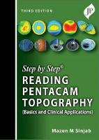 Step by Step: Reading Pentacam Topography