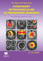 An Atlas and Manual of Coronary Intravascular Ultrasound Imaging (CD-ROM)