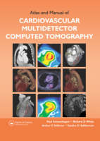 Atlas and Manual of Cardiovascular Multi-detector Computed Tomography (Hardback)