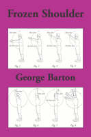 The Frozen Shoulder (Paperback)