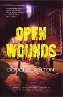 Open Wounds - Davie McCall Series 4 (Paperback)