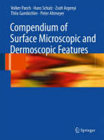 Compendium of Surface Microscopic and Dermoscopic Features (Hardback)