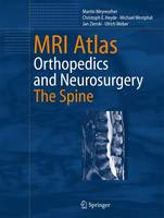 MRI Atlas: Orthopedics and Neurosurgery, The Spine (Paperback)