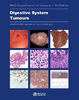 Digestive system tumours - World Health Organization Classification of Tumours 1 (Paperback)